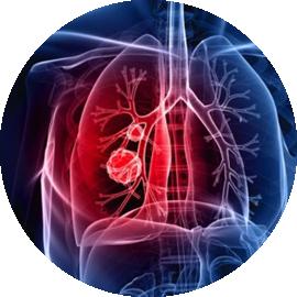 pulmunologia_ild